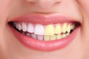 Evde Diş Beyazlatmanın Doğal Yöntemleri