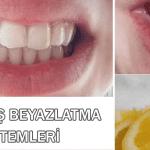 Diş Beyazlatma ve Bakım Evde Nasıl Yapılır