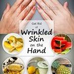 Kırışık Eller İçin Bakım Nasıl Yapılır?