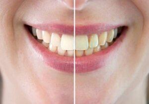 Diş Beyazlatma Evde