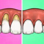 Dişlerinizi Çok Sert Fırçaladığınızı Gösteren 4 İşaret 2