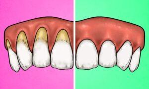 Dişlerinizi Çok Sert Fırçaladığınızı Gösteren 4 İşaret