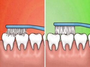 Dişlerinizi Çok Sert Fırçaladığınızı Gösteren 4 İşaret 4