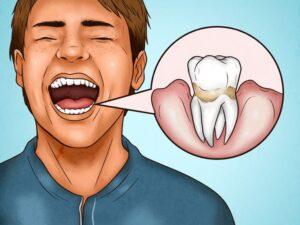 Dişlerinizi Çok Sert Fırçaladığınızı Gösteren 4 İşaret 5