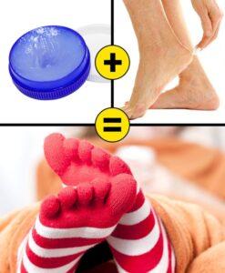 Topuk Çatlakları İçin 10 Pratik Çözüm 6
